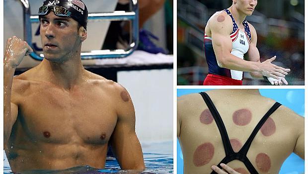 Олимпийците познаха силата на бабиния илач